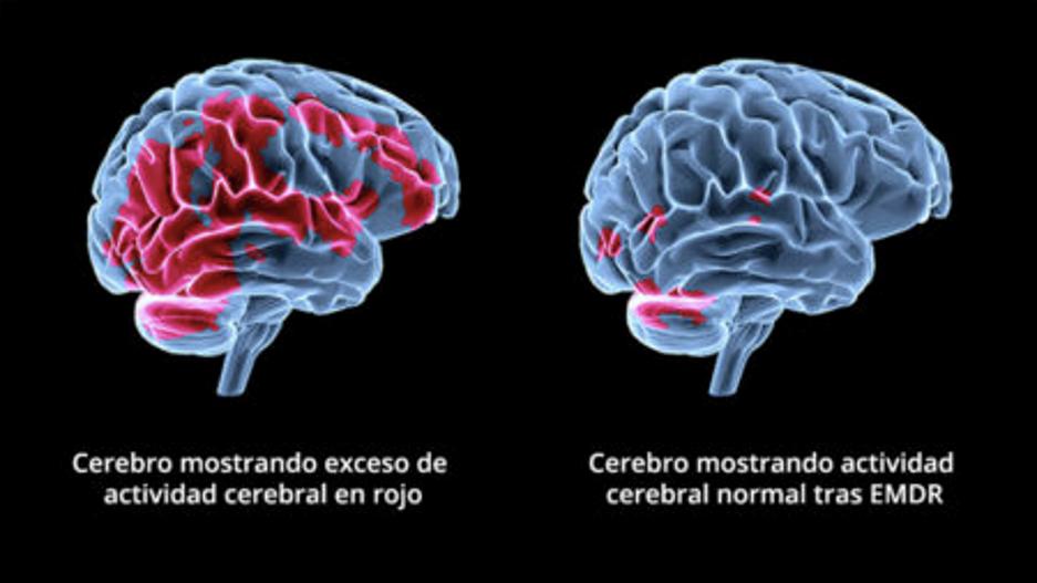 cerebro emdr